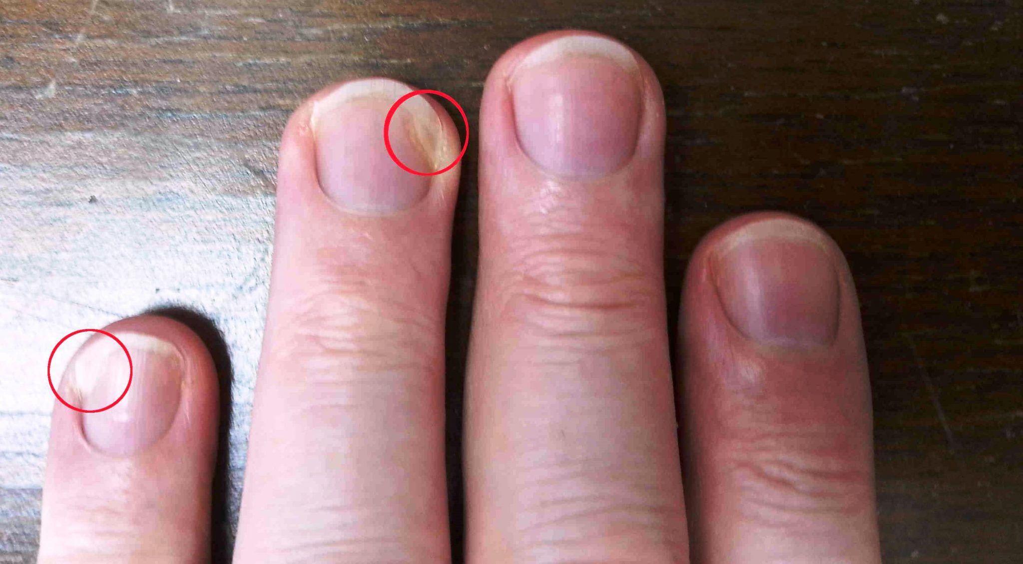 Грибок ногтей на руках: симптомы, как и чем лечить