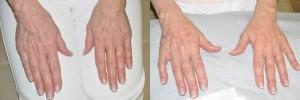ellerin yaşlanması2