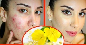 Amazing-Health-Benefits-of-Evening-Primrose-Oil-face