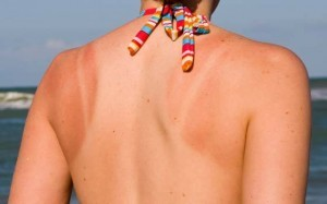 How-to-Get-Rid-of-Sunburn-Blisters-Treatment-and-Best-Home-Remedies