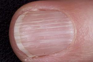 longitudinal-ridging-nails