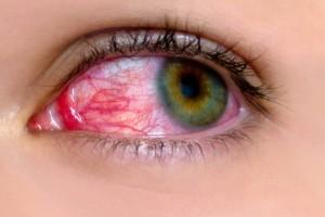 01-red-clear-signs-pink-eye-apichsn-25589704_medium
