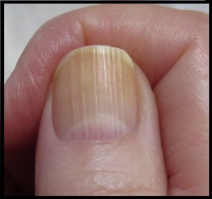 what-causes-vertical-or-horizontal-ridges-on-nails_2