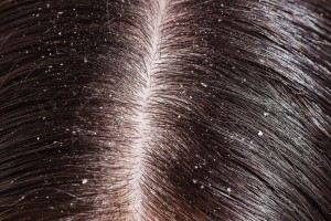 dandruff-and-dry-scalp-are-different-but-need-similar-treatment-1