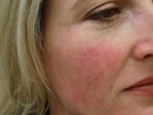 Cheek Broken Capillaries Laser Treatment - Before Photo