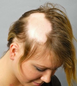 hairlosswomen-female-hair-loss-711106877