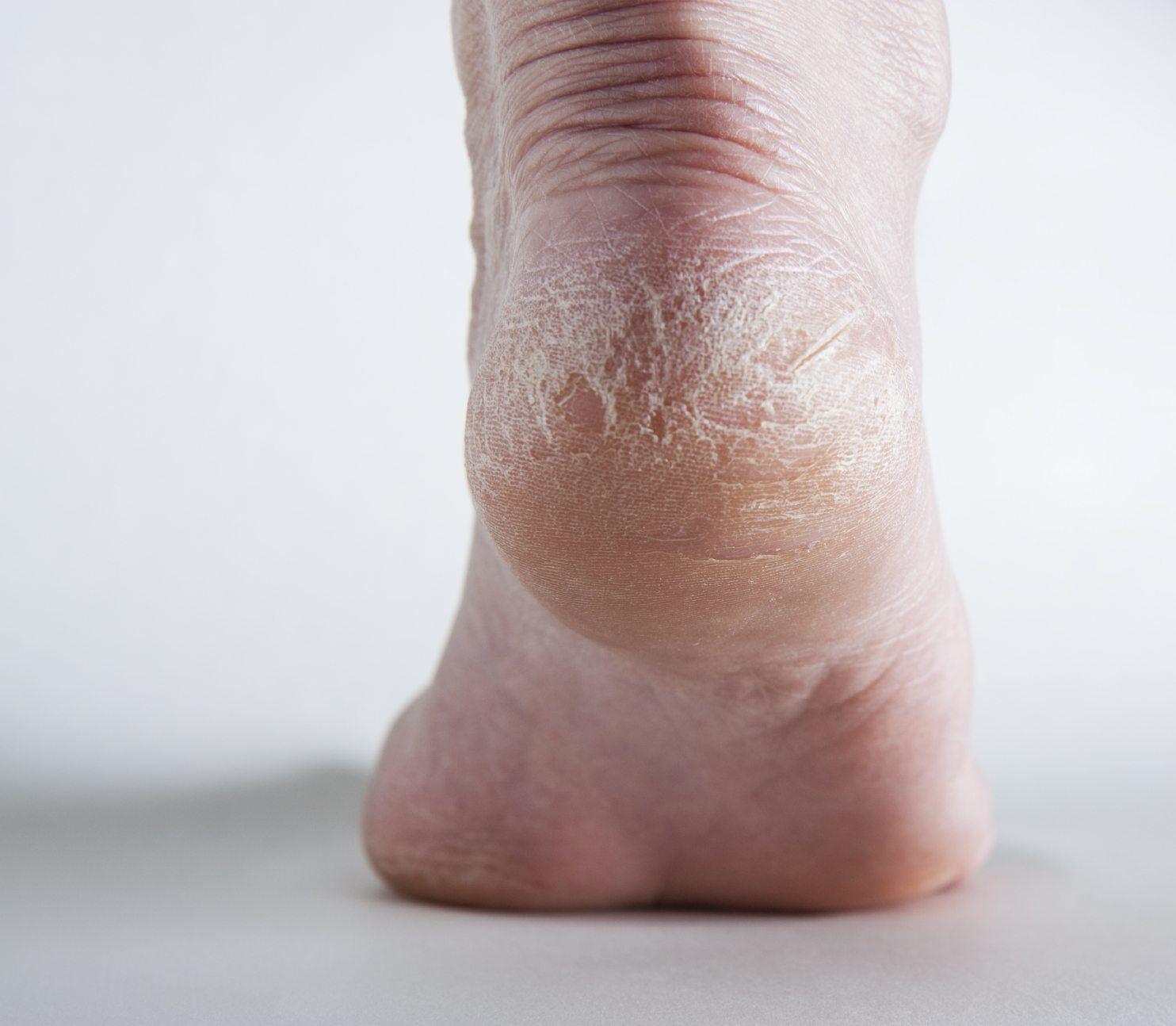 Topuk Çatlağı Neden Olur Nasıl Geçer-Topuk Çatlaması Tedavisi