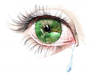 Kuru Göz Sendromu