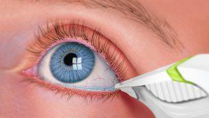 Kuru göz sendromu tedavi yöntemleri